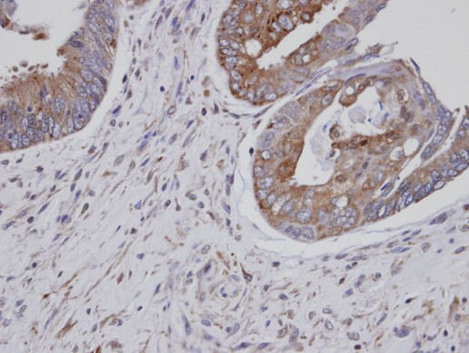 Immunohistochemistry (Formalin/PFA-fixed paraffin-embedded sections) - ASS1 antibody (ab95964)