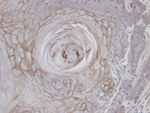 Immunohistochemistry (Formalin/PFA-fixed paraffin-embedded sections) - MAN1B1 antibody (ab95975)