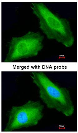 Immunocytochemistry/ Immunofluorescence - DDX3Y antibody (ab95979)