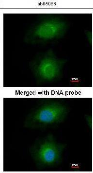 Immunocytochemistry/ Immunofluorescence - MVD antibody (ab95986)