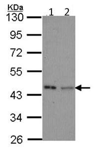 Western blot - IVD antibody (ab95994)