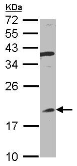 Western blot - Interferon alpha 8 antibody (ab96003)