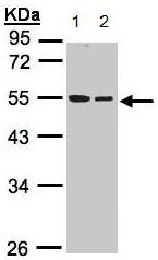 Western blot - beta I Tubulin antibody (ab96008)