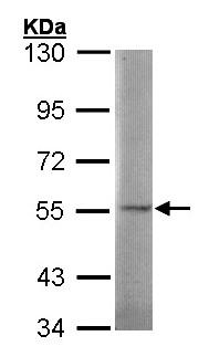 Western blot - SGSH antibody (ab96030)