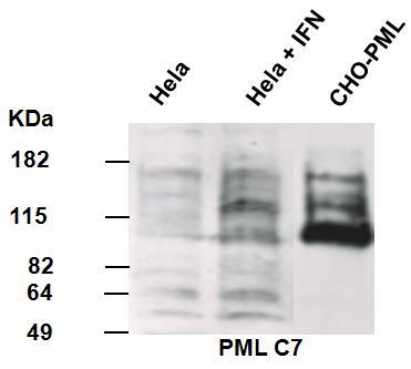 Western blot - PML Protein antibody [C7] (ab96055)