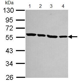 Western blot - alpha Tubulin antibody (ab96059)