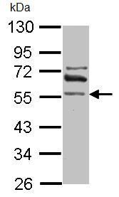Western blot - ALDH1A2 antibody (ab96060)