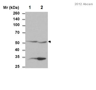 Western blot - Anti-ALDH1A2 antibody (ab96060)