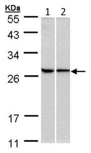Western blot - RPL13A antibody (ab96074)