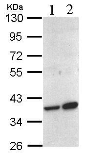 Western blot - ACMSD antibody (ab96081)
