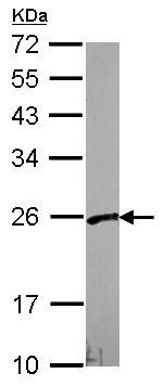 Western blot - PFDN3 antibody (ab96085)