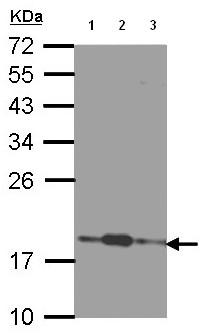 Western blot - COMMD7 antibody (ab96091)