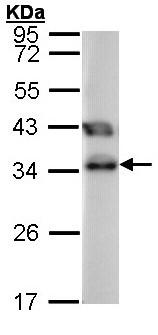 Western blot - TTC1 antibody (ab96092)