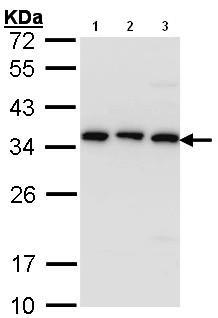 Western blot - CKAP1 antibody (ab96101)