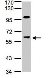 Western blot - PPP1R16A antibody (ab96118)
