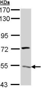 Western blot - ATP6V1H  antibody (ab96120)