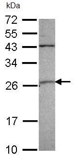 Western blot - GSTA4 antibody (ab96128)