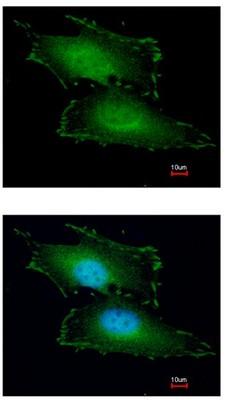 Immunocytochemistry/ Immunofluorescence - PEF1 antibody (ab96132)