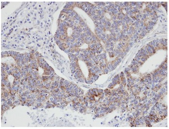 Immunohistochemistry (Formalin/PFA-fixed paraffin-embedded sections) - p21-ARC antibody (ab96137)