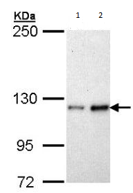 Western blot - Fibulin 2 antibody (ab96138)