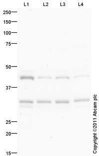 Western blot - Anti-VDAC1/Porin antibody - Mitochondrial Loading Control (ab96140)