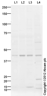 Western blot - Anti-glucose-6-phosphatase, catalytic subunit antibody (ab96142)