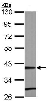 Western blot - ZNF707 antibody (ab96143)