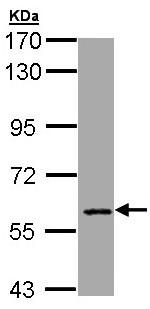 Western blot - MTGR1 antibody (ab96161)