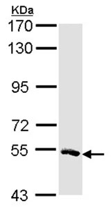 Western blot - MSTO1 antibody (ab96174)