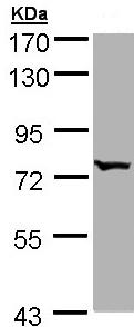 Western blot - BBS10 antibody (ab96177)