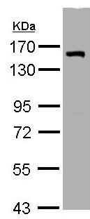 Western blot - LIMCH1 antibody (ab96178)