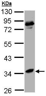 Western blot - liver Arginase antibody (ab96183)