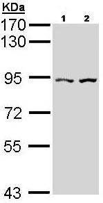 Western blot - CTNNAL1 antibody (ab96184)