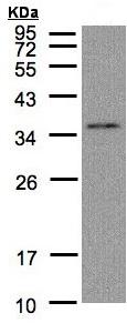 Western blot - GLOD4 antibody (ab96194)