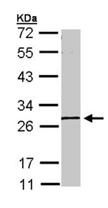 Western blot - GK5 antibody (ab96202)