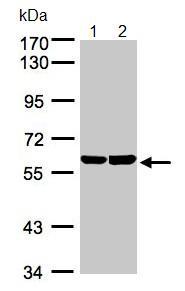 Western blot - TBRG4 antibody (ab96217)