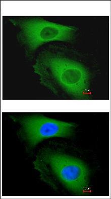 Immunocytochemistry/ Immunofluorescence - LARS2 antibody (ab96221)