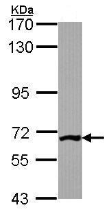 Western blot - PGM3 (phospho) antibody (ab96224)