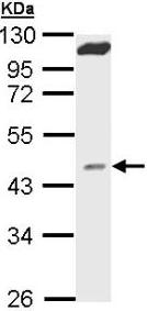 Western blot - MVD antibody (ab96226)