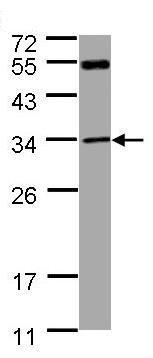 Western blot - MTAP antibody (ab96231)