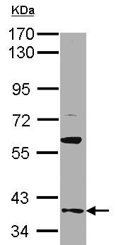 Western blot - GAS2L1 antibody (ab96260)