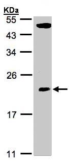 Western blot - TPRKB antibody (ab96261)