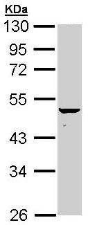 Western blot - KRT34 antibody (ab96268)