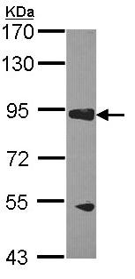 Western blot - RASA3 antibody (ab96272)