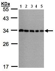 Western blot - CHMP5 antibody (ab96273)