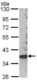 Western blot - SCAP2 antibody (ab96274)