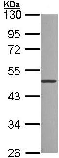 Western blot - ZNF277 antibody (ab96299)