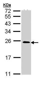 Western blot - RRAS2 antibody (ab96307)