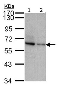 Western blot - TOM1L2 antibody (ab96320)