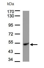 Western blot - Ubiquinol-Cytochrome C Reductase Core Protein I antibody (ab96333)